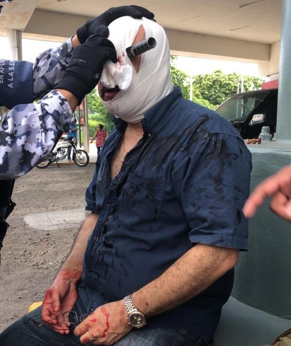 Sujeto que enterró cuchillo en ojo a otro en Veracruz difícilmente saldrá de prisión