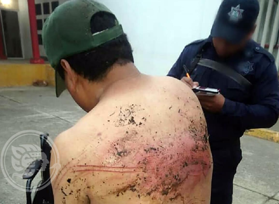 Con presunta complicidad de Fuerza Civil, torturan a mototortillero en Isla