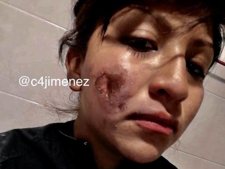 Detrás del uniforme también hay mujeres, reclama policía herida durante protestas