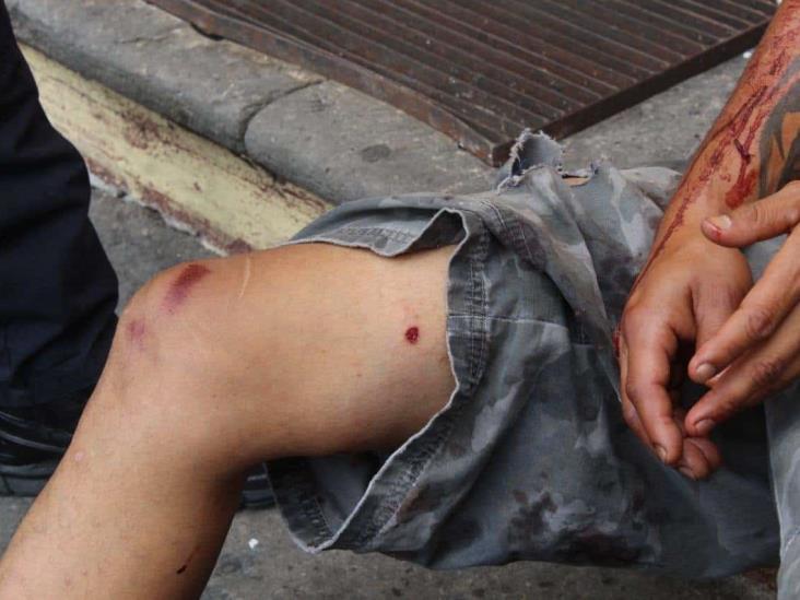 Hallan a sujeto baleado en calles de Xalapa