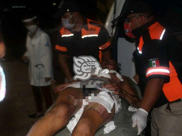 Muere joven que sufrió quemaduras tras caída de rayo en Acayucan