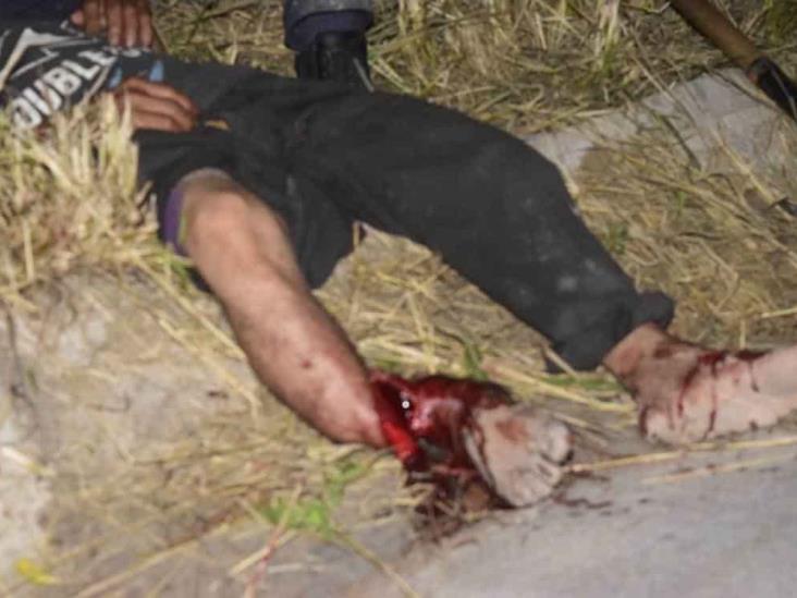 En Veracruz, hombre sufre importantes lesiones en sus piernas tras ser atropellado