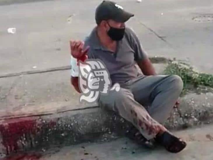 Lo hieren durante intento de asalto en Ciudad Olmeca