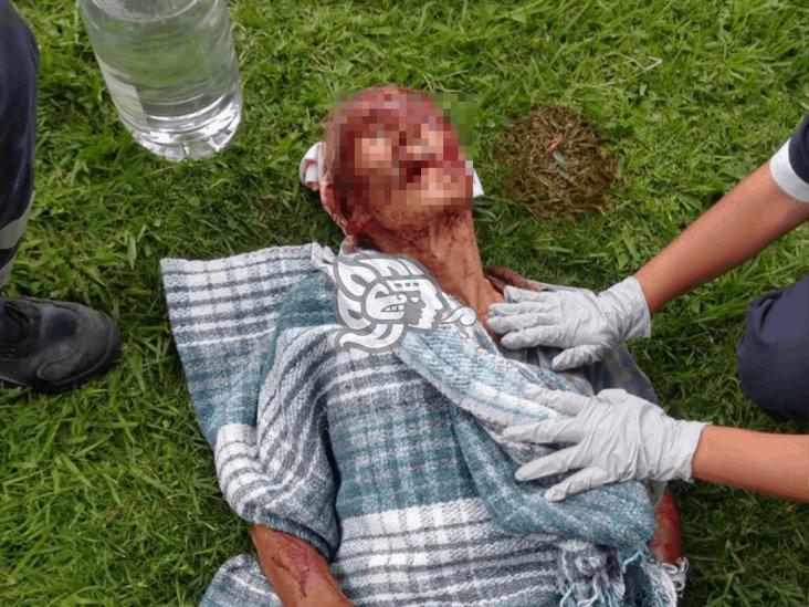 Octagenario sufre brutal ataque de perros en Xalapa