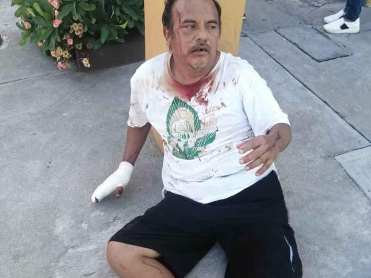 Con lujo de violencia asaltan a hombre con machete en mano; resulta herido