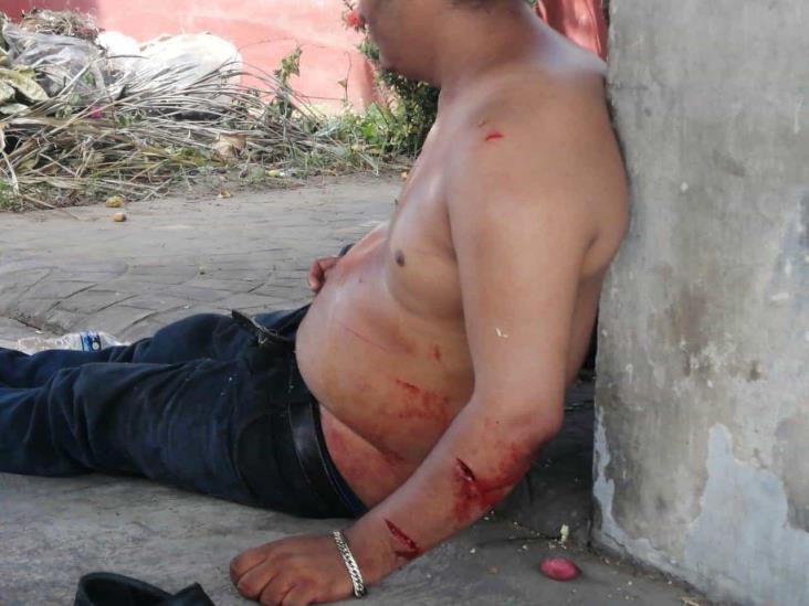 Asaltan y lesionan a dos hombres en Veracruz