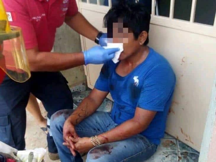 Le dan dos balazos a hombre frente a su vivienda en Cosoleacaque