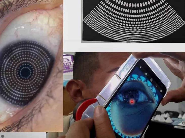 Desarrollan en la UNAM topógrafo corneal que detecta problemas visuales