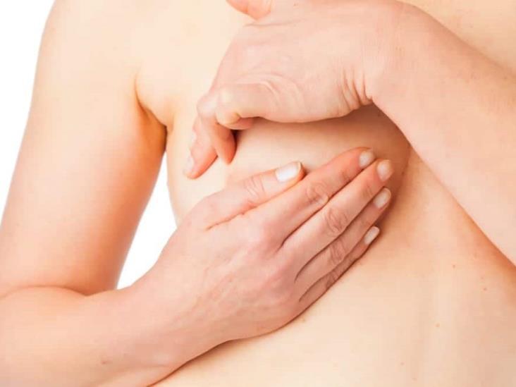 Autoexploración de mama, acción que salva vidas: IMSS